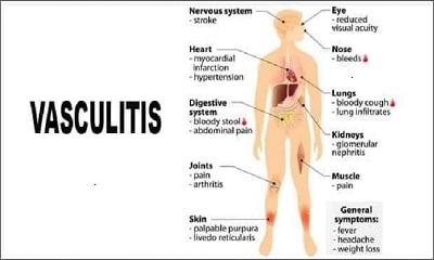 ভ্যাসকুলাইটিস (Vasculitis)