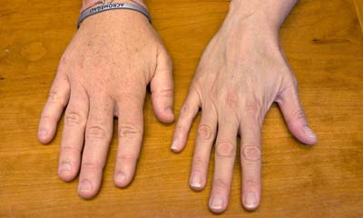 হাত-পা অস্বাভাবিক আকার ধারণ করা  (এক্রোমেগালি)