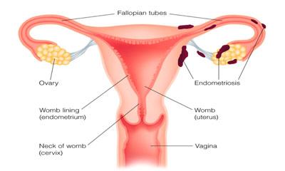 এন্ডোমেট্রিয়াম  (Endometriosis)