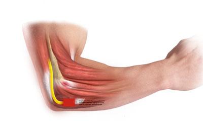 কনুইয়ের দুর্বলতা (Elbow weakness)