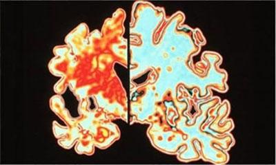 ডিমেনশিয়া বা স্মৃতিভ্রংশ: রোগের প্রকোপ বেড়েই চলছে বাংলাদেশে