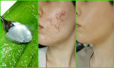 Why You should Use Aloe Vera For Skin!