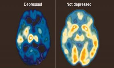 How Does Depression Affect the Brain?